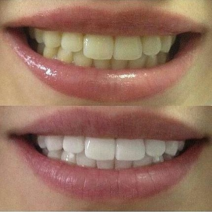 """Косметическое отбеливание зубов """"Премиум"""""""